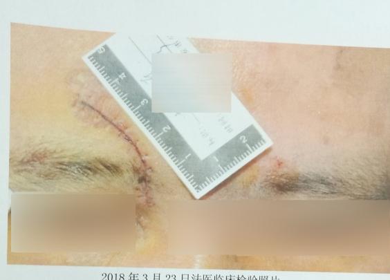 这是要自残?他主动找医生将伤口切长1.5厘米